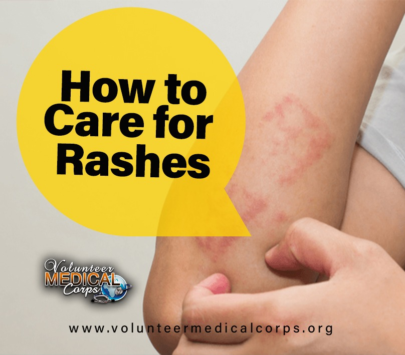 HOW TO CARE FOR RASHES